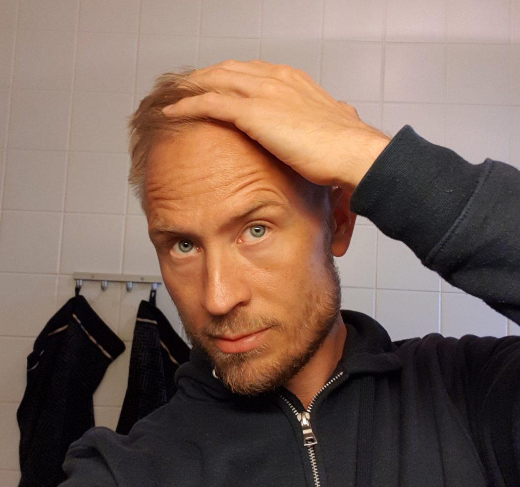 fungerande metoder mot håravfall